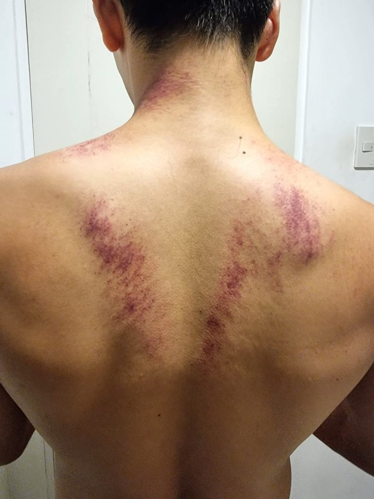After a 15-minute gua sha session, petechiae patches emerged on author Don Velasco's back